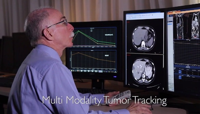 Multi-Modality Tumor Tracking on IntelliSpace Portal at Sheba Medical -Center, Tel Ha -Shomer, Israel
